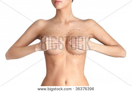 Outlined parts of breast plastic correction, isolated, white background