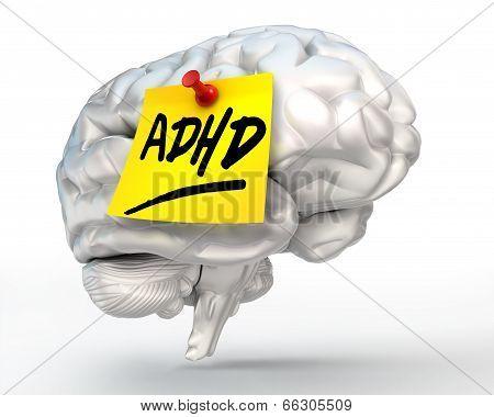 Adhd Yellow Note On Brain