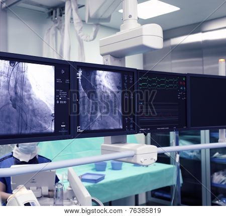 X-ray Monitors