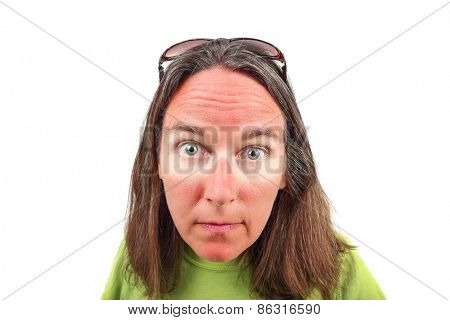 Woman with sunglasses sunburn