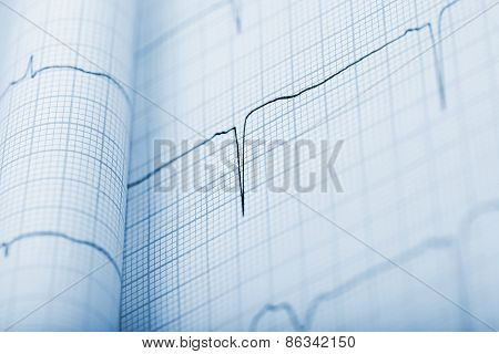 Ekg Background In Monochrome