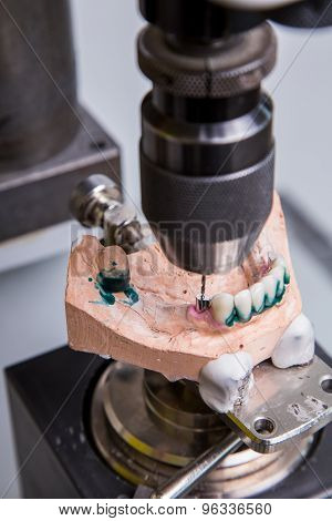 Production Dentures Drill In Action