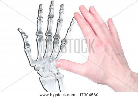 Hand in flash and bone