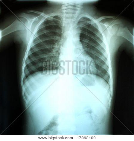 Child's X-ray