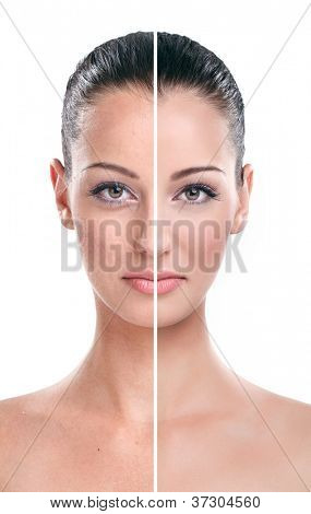 Close-up of a woman face divided in two parts - bad retouch and good beauty retouch.