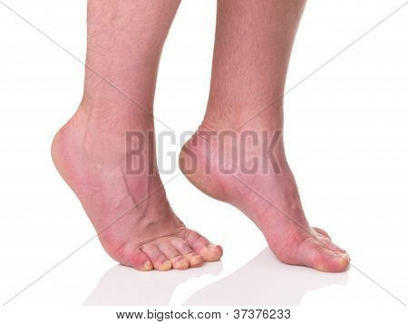 Mature Man Barefoot With Dry Skin And Nails Standing On Tips Of Toes