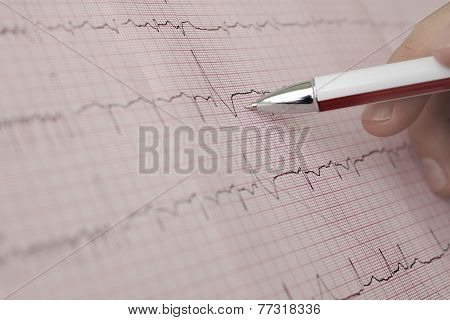 Working With The Ecg