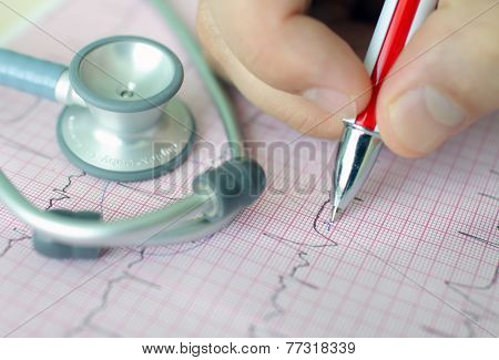 Hand Holding Pen Making Mark On Ecg