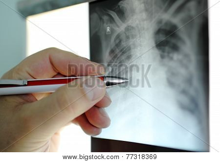 Hand With  Pen Points To An Area X-ray,