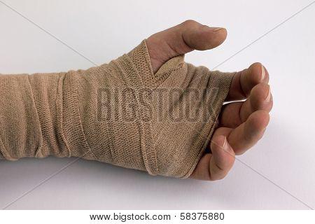 Injured hand