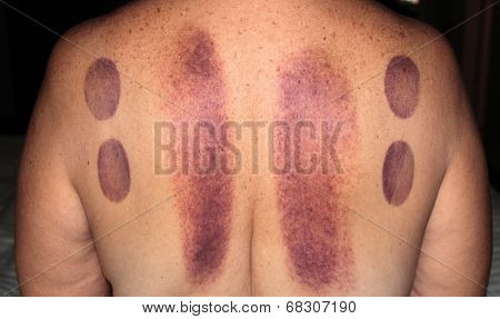 An unidentifiable person shows the bruising results after a session of Cupping Therapy. Cupping is an ancient form of Chinese alternative medicine, claimed to cure many ailments. Medical Healthcare