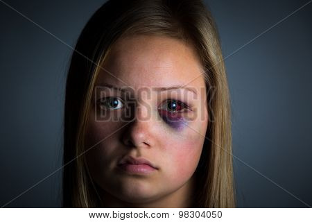 Young girl victim