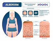 Albinism Vector Illustration. Labeled Medical Melanin Pigment Loss Scheme. Genetic Problem With Skin poster
