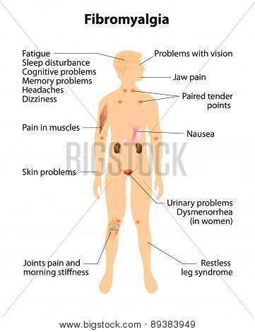 Fibromyalgia. Signs And Symptoms.
