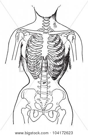 Deformed by the corsets, showing condition of bones in women who habitually wear tight corsets, vintage engraved illustration.