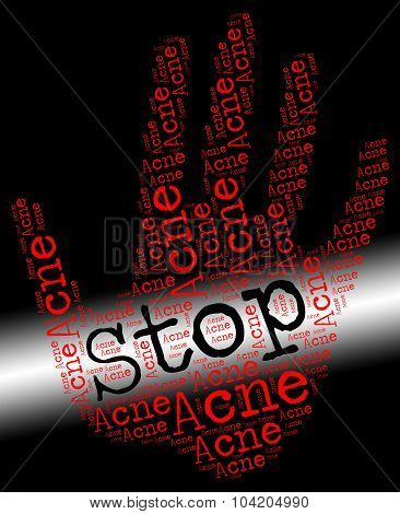 Stop Acne Represents Warning Sign And Blackheads