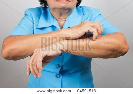 Itching In A Old Woman