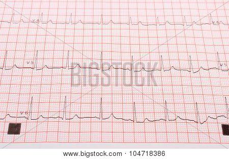 Electrocardiogram Graph Report