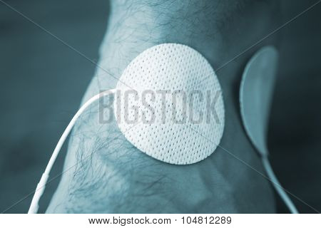 Patient Hand Arm Wrist Physiotherapy Treatment