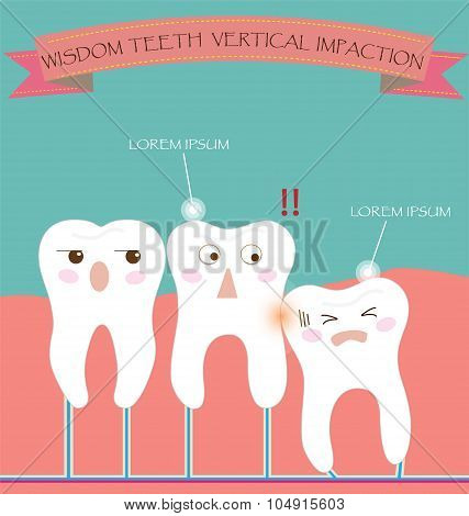 Wisdom Teeth Vertical Impaction