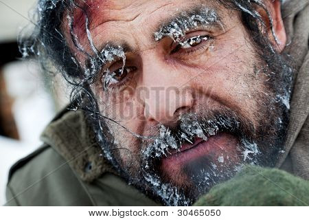 Close-up of homeless male face covered with frost