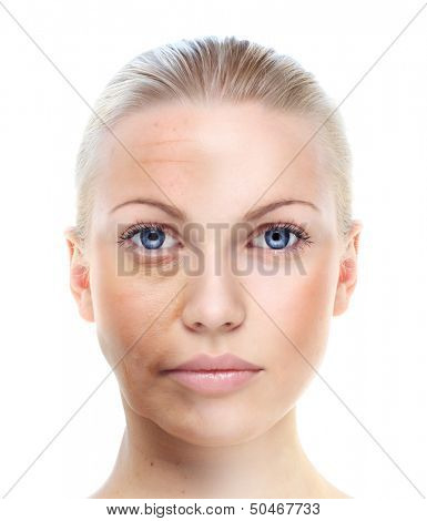 Woman's portrait isolated on white, before and after retouch, skin care concept.
