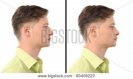 Before and after photos of a young man with nose job plastic surgery.