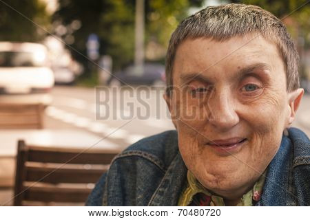 Closeup portrait of disabled man with cerebral palsy sitting at an outdoor cafe.