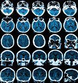 foto of frontal lobe  - MRI scan of the human brain  - JPG