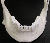 pic of mandible  - A mandible  - JPG