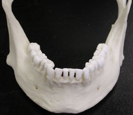 picture of mandible  - A mandible  - JPG