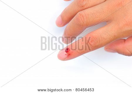 injured fingers against white