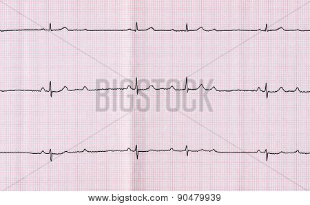 Ecg With Atrioventricular Block (av Block) Ii Degree Type Mobitts I