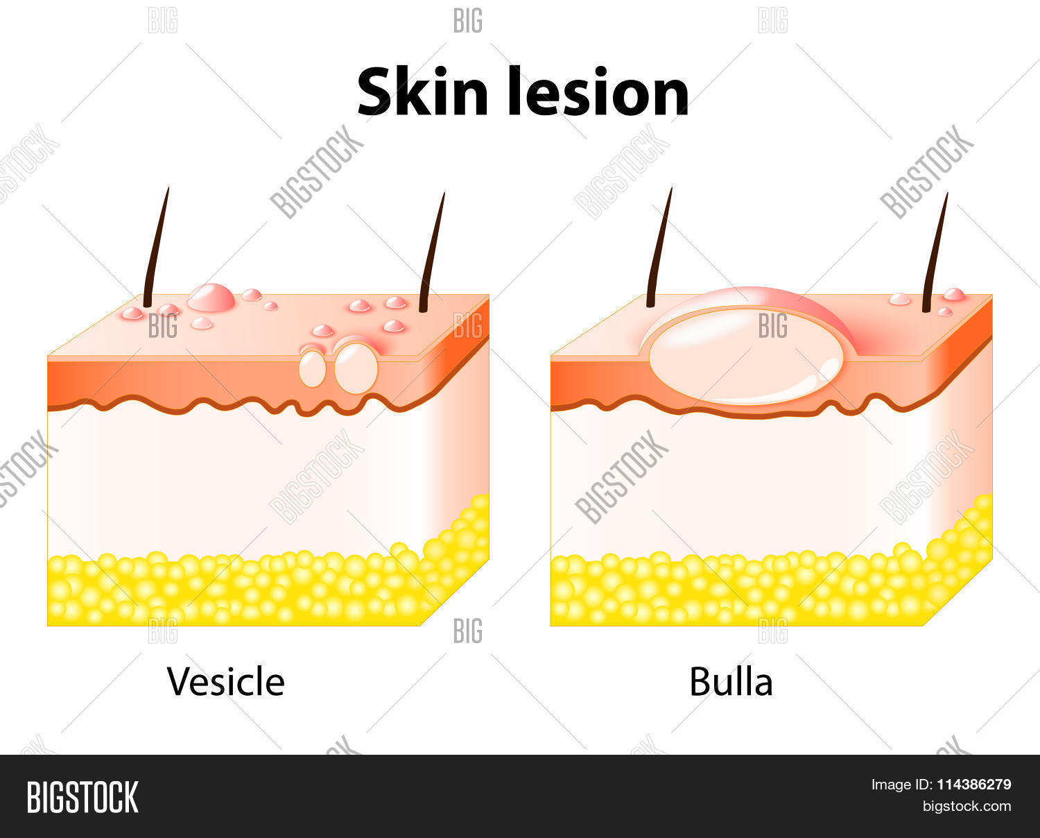 Vesicle Bulla. Skin Lesion Vector & Photo | Bigstock