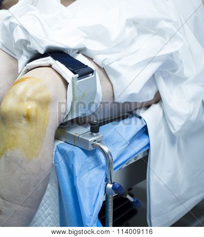 Knee Arthroscopy Orthopedic Surgery Operation