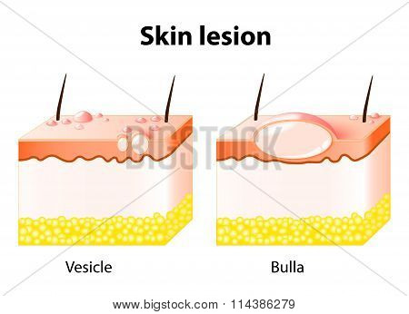 Vesicle And Bulla. Skin Lesion