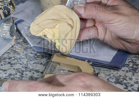 Dental Technician Is Emptying Plaster Models.