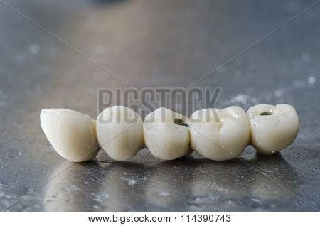 Dental Porcelain Bridge.