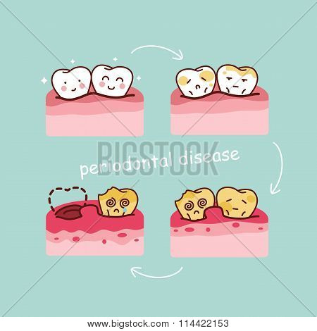 Cartoon Tooth Periodontal Disease