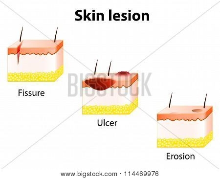 Erosion, Ulcer And Fissure