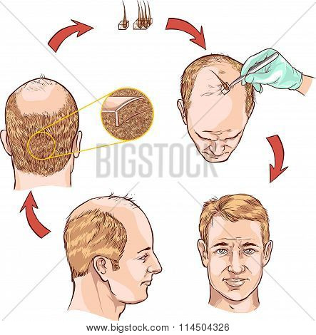 medical drawing of a hair plantation