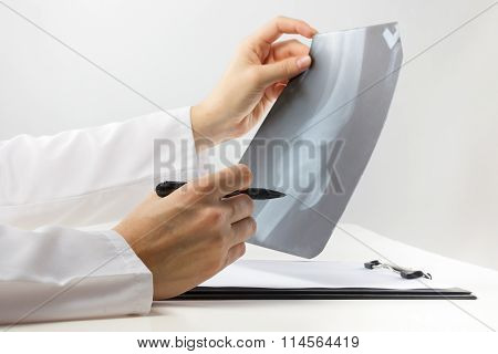 Healthcare and medicine concept - doctor with medical clipboard analyzing leg knee roentgen or x-ray