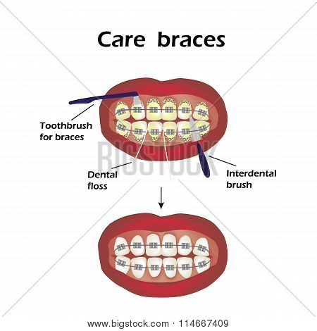Care braces. Interdental brush teeth. Dental floss. Infographics. Vector illustration on isolated ba