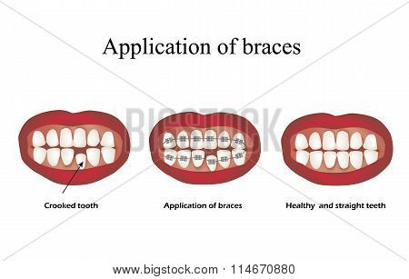 The use of braces. Crooked teeth. Orthodontics. Infographics. Vector illustration on isolated backgr