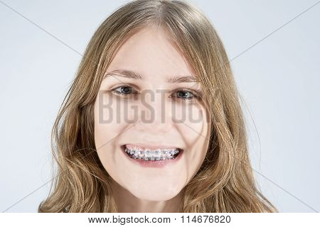 Caucasian Teenage Girl Showing Her Teeth Brackets. Posing Indoors Against White Background.