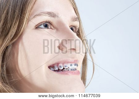 Caucasian Teenage Girl Showing Her Teeth Brackets. Posing Indoors Against White Background