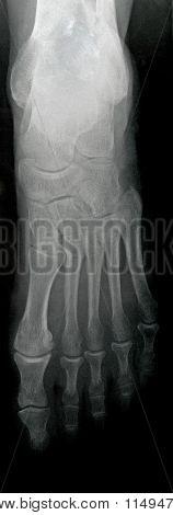 Anterior Foot X-ray