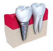 stock photo of jaw-bone  - Dental implant  - JPG