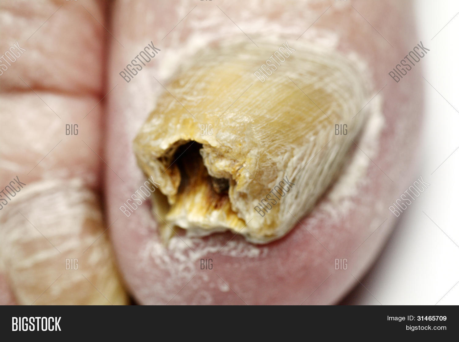 how to clear fungal nail infections