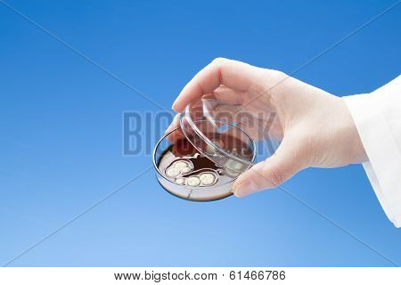 Petri Dish With Colonies Of Bacteria In Hand